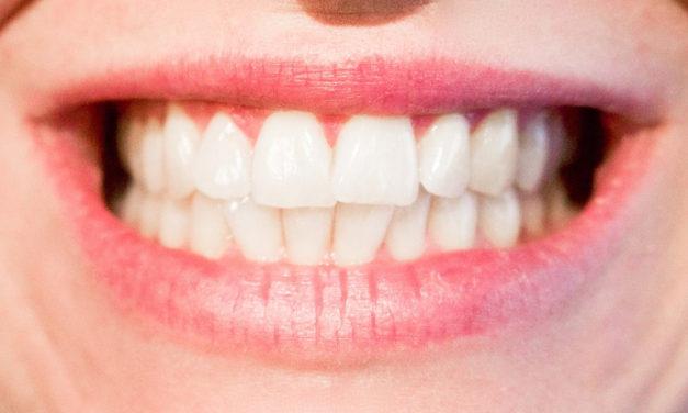 ¿Qué mancha mis dientes? Buenos hábitos para mantener la sonrisa blanca